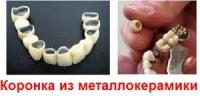 Коронка из металлокерамики ( Производство Украина )