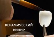 Винир керамический empress 2