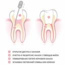 Эндодонтия - Пломбирование корневых каналов молочных зубов