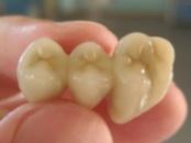 Зубные мостовидные протезы (зубной мост)