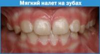Чистка зубов от мягкого налета