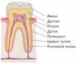 Что такое корневой канал?