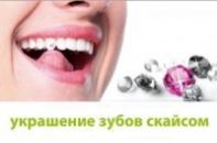 Украшения на зубы...- РАЗНОЦВЕТНЫЙ Скайс (SKYCE)
