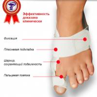 Профессиональное лечение косточки на ноге c Валюфикс escape:'html'