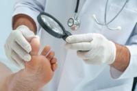 .Медицинский педикюр при гиперкератозе подошвы (муж)