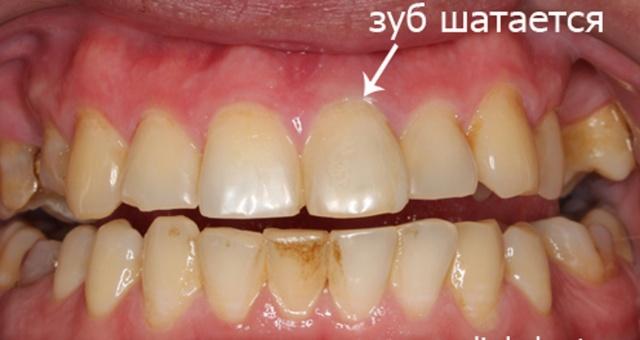 Шинирование подвижных зубов ( стекловолоконная лента)