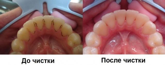 Гигиенистическая стоматология. Ультразвуковая чистка зубов...